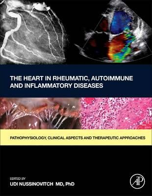 Heart in Rheumatic, Autoimmune and Inflammatory Diseases (BOK)