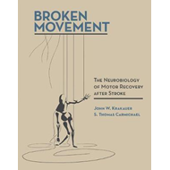 Broken Movement (BOK)