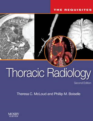 Thoracic Radiology: The Requisites (BOK)