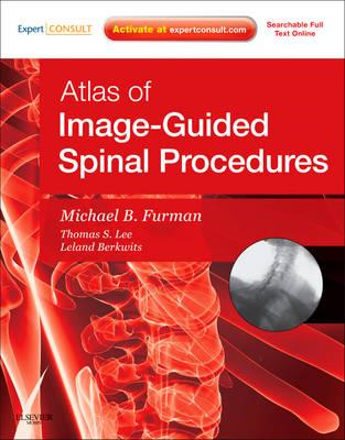 Atlas of Image - Guided Spinal Procedures (BOK)