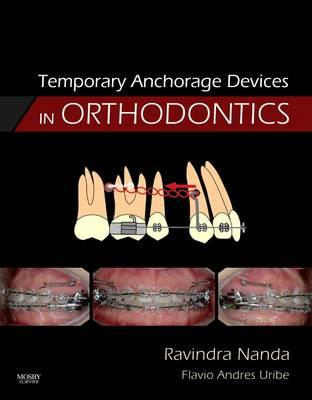 Temporary Anchorage Devices in Orthodontics (BOK)