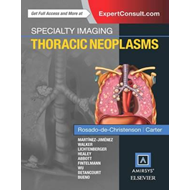 Specialty Imaging: Thoracic Neoplasms (BOK)