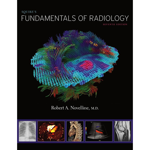 Squire's Fundamentals of Radiology (BOK)
