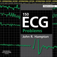150 ECG Problems, International Edition (BOK)