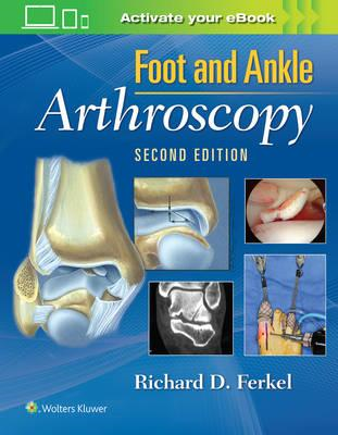 Foot & Ankle Arthroscopy (BOK)