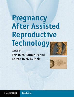 Pregnancy After Assisted Reproductive Technology (BOK)