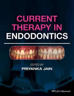 Current Therapy in Endodontics (BOK)
