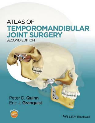 Atlas of Temporomandibular Joint Surgery (BOK)