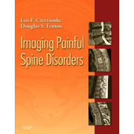 Imaging Painful Spine Disorders (BOK)