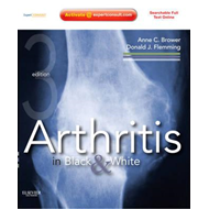 Arthritis in Black and White: (Expert Consult- Online and Print) (BOK)