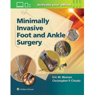 Minimally Invasive Foot & Ankle Surgery (BOK)