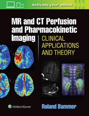 MR and CT Perfusion and Pharmacokinetic Imaging: Clinical Ap (BOK)