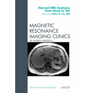 Normal MR Anatomy from Head to Toe, An Issue of Magnetic Res (BOK)