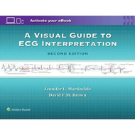 Visual Guide to ECG Interpretation (BOK)