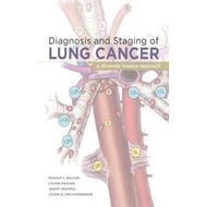Diagnosis and Staging of Lung Cancer: A Minimally Invasive Approach (BOK)