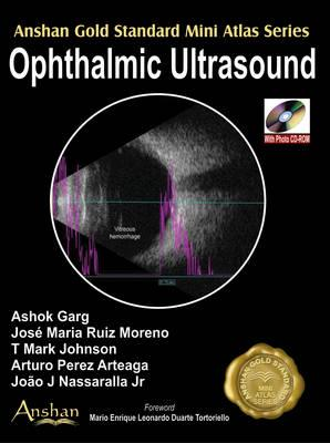Mini Atlas of Ophthalmic Ultrasound (BOK)
