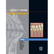 Specialty Imaging: Dental Implants (BOK)