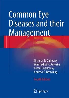 Common Eye Diseases and their Management (BOK)