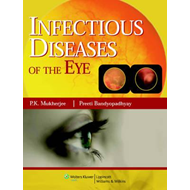 Infectious Diseases of the Eyes (BOK)