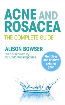 Acne and Rosacea: The Complete Guide (BOK)
