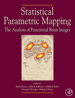 Statistical Parametric Mapping: The Analysis of Functional B (BOK)