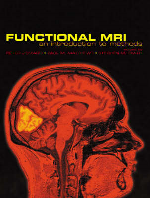 Functional Magnetic Resonance Imaging: An Introduction to Methods (BOK)
