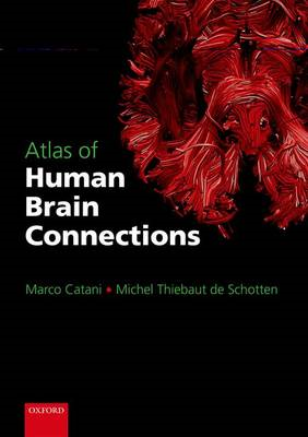 Atlas of Human Brain Connections (BOK)