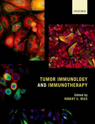 Tumor Immunology and Immunotherapy (BOK)
