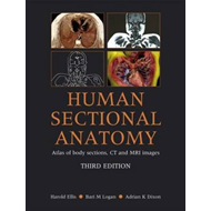 Human Sectional Anatomy: Atlas of Body Sections, CT and MRI Images (BOK)
