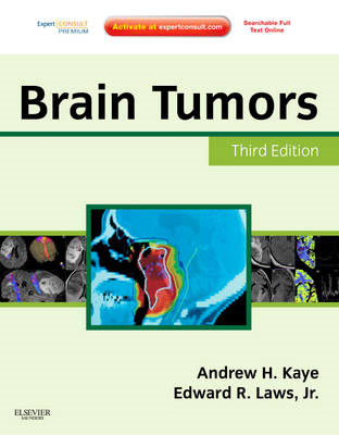 Brain Tumors: An Encyclopedic Approach (BOK)