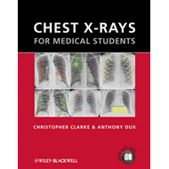 Chest X-rays for Medical Students (BOK)