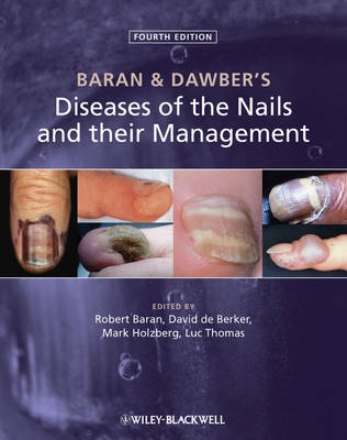 Baran and Dawber's Diseases of the Nails and Their Management (BOK)