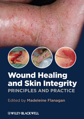 Wound Healing and Skin Integrity - Principles and Practice (BOK)