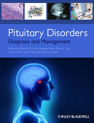 Pituitary Disorders: Diagnosis and Management (BOK)