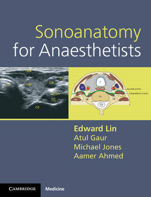Sonoanatomy for Anaesthetists (BOK)