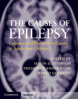 The Causes of Epilepsy: Common and Uncommon Causes in Adults and Children (BOK)