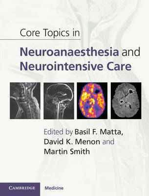 Core Topics in Neuroanaesthesia and Neurointensive Care (BOK)