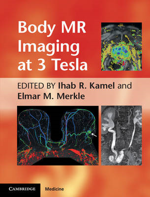 Body MR Imaging at 3 Tesla (BOK)