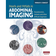 Pearls and Pitfalls in Abdominal Imaging: Pseudotumors, Variants and Other Difficult Diagnoses (BOK)