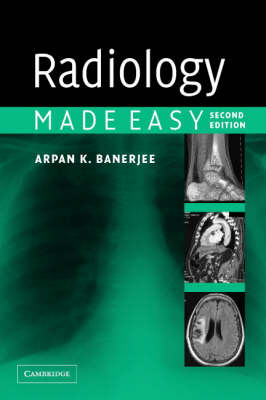 Radiology Made Easy (BOK)