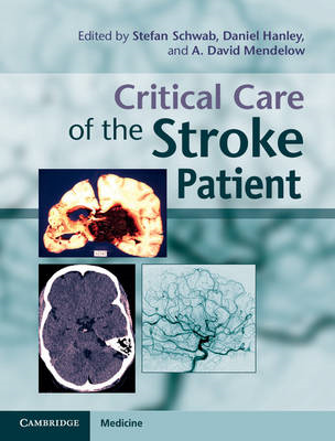 Critical Care of the Stroke Patient (BOK)