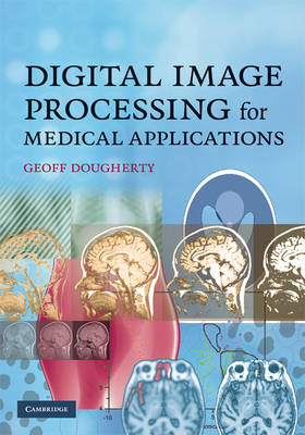 Digital Image Processing for Medical Applications (BOK)