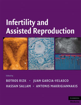 Infertility and Assisted Reproduction (BOK)