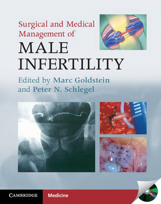 Surgical and Medical Management of Male Infertility (BOK)