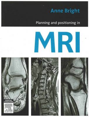 Planning and Positioning in MRI (BOK)
