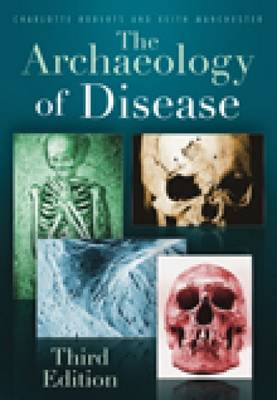 Archaeology of Disease (BOK)