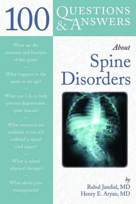 100 Questions and Answers About Spine Disorders (BOK)