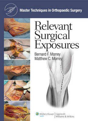 Master Techniques in Orthopaedic Surgery: Relevant Surgical Exposures (BOK)
