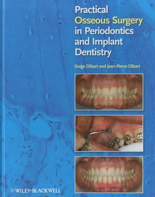 Practical Osseous Surgery in Periodontics and Implant Dentistry (BOK)