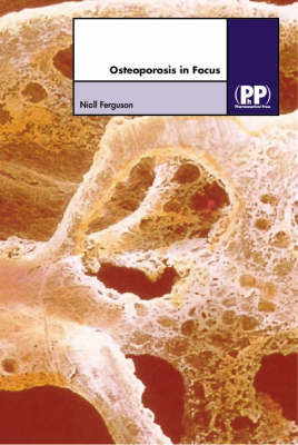 Osteoporosis in Focus (BOK)